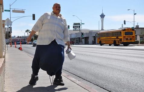 Πέθανε απο ανακοπή καρδιάς ο άντρας με του 63 κιλά όρχεις!